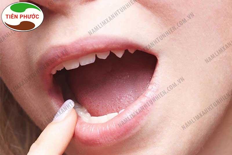 Địa chỉ bán nấm lim xanh chữa ung thư lưỡi2